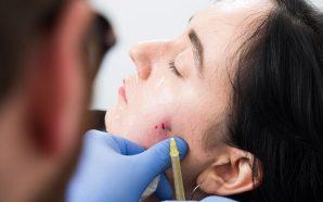 Jess undergoing the vampire facial